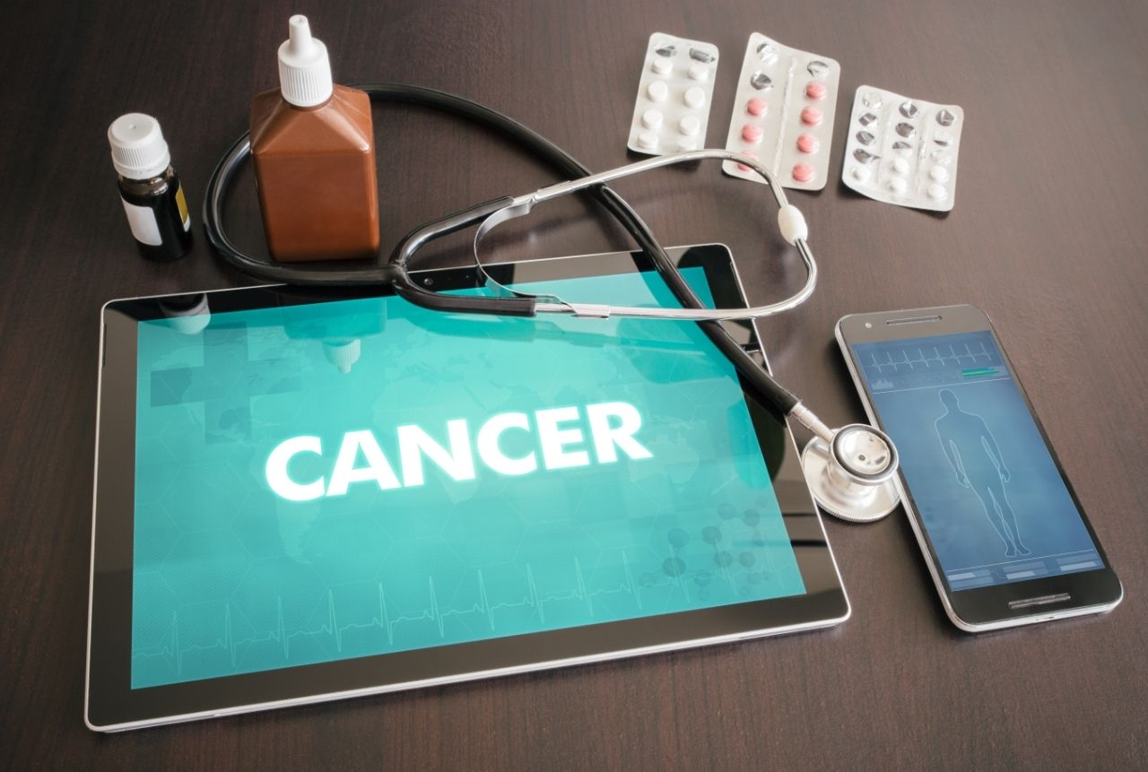 Impact of Screening Mammography on Mortality from Breast Cancer